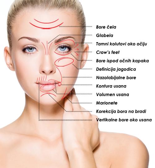Esteske korekcije lica