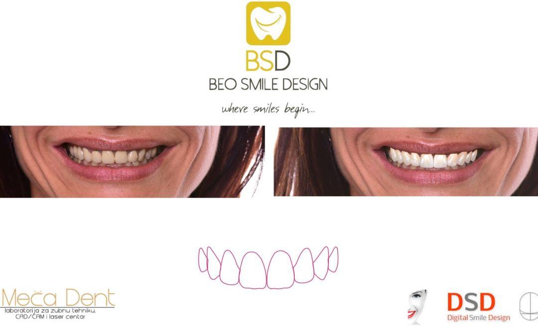 Nova metoda u kreiranju osmeha – DIGITAL SMILE DESIGN