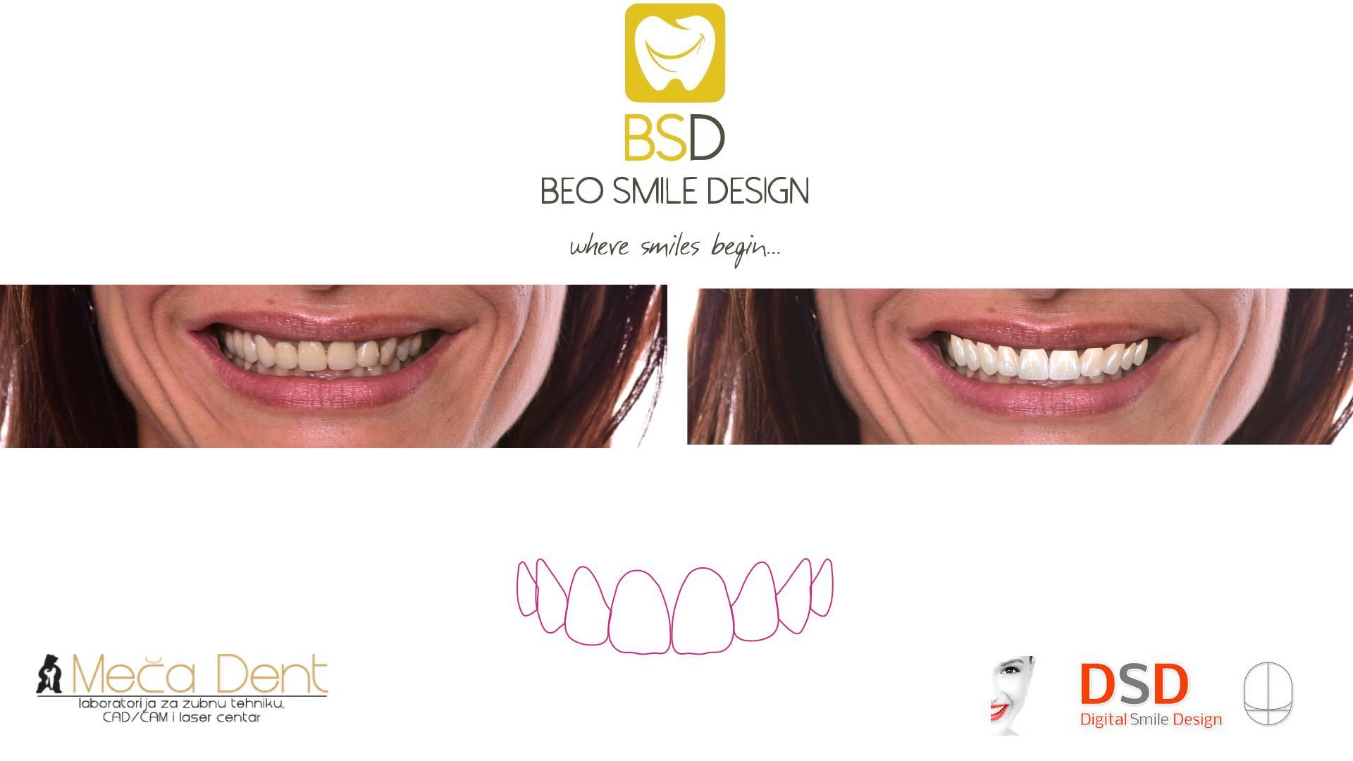 Digital Smile Design Beograd