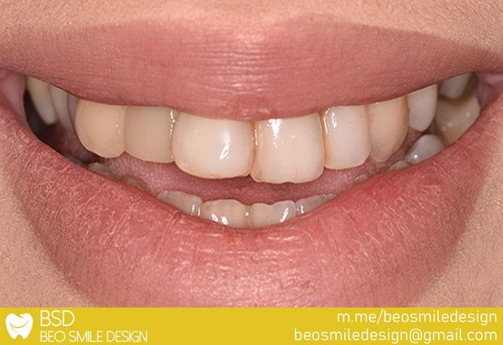 Dental implants - Non-metallic crowns - Tooth whitening