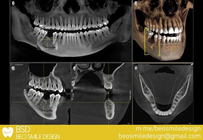 Apikotomija - resekcija korena zuba