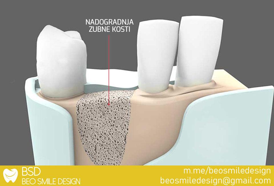 Oralna hirurgija nadogradnja kosti