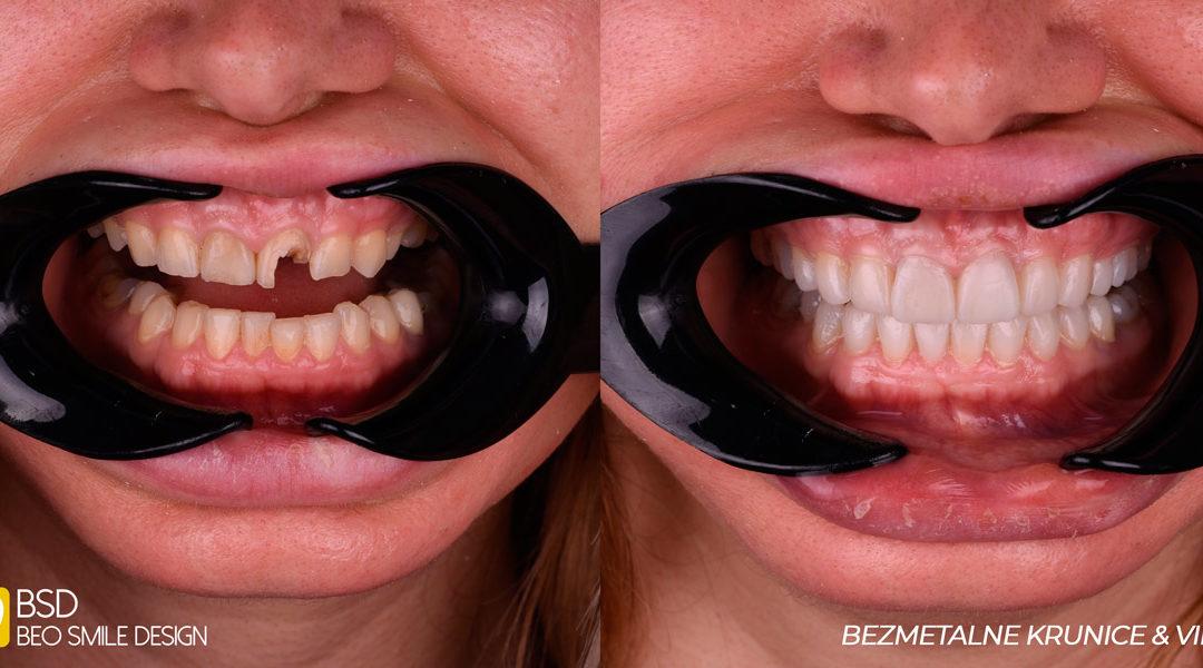 Da li novi zubi mogu vratiti samopouzdanje? Šta se sve može postići bezmetalnim krunicama i vinirima
