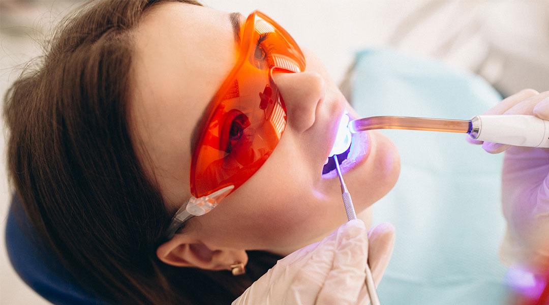 Ordinacijsko izbeljivanje zuba