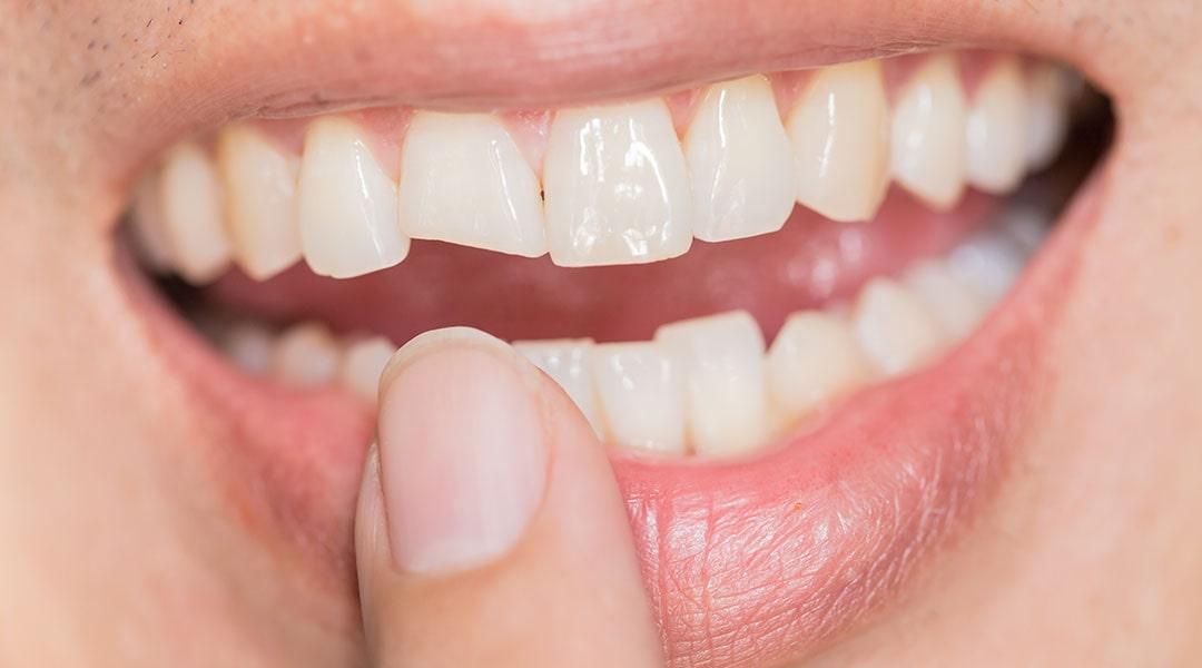 Nekarijesna oštećenja zuba