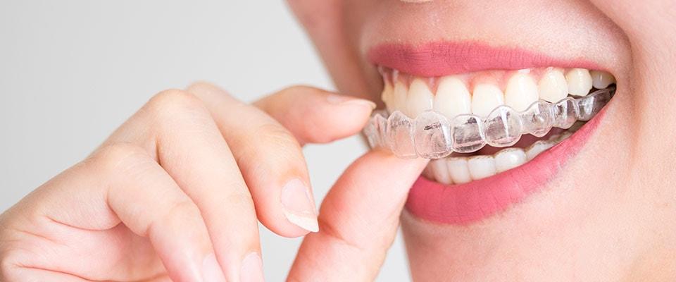 ispravljanje zuba folijama