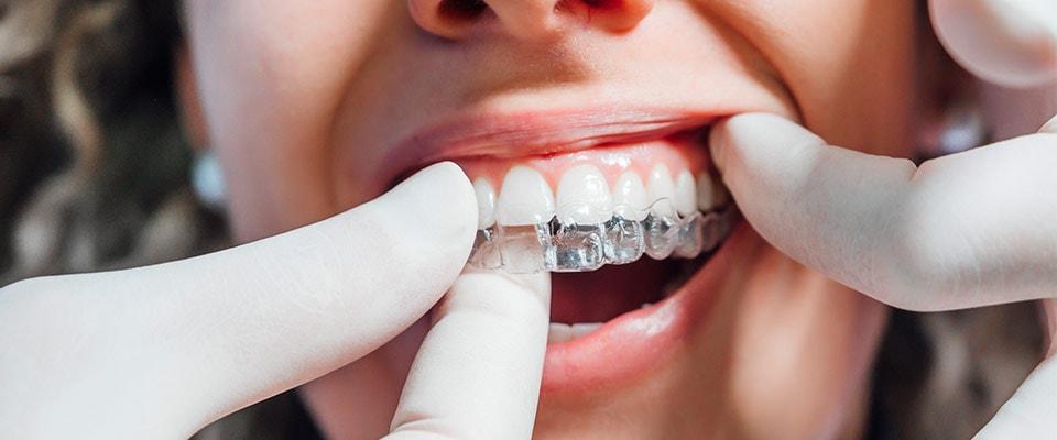 Ispravljanje zuba providnim folijama