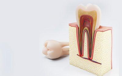 Lečenje kanala korena zuba